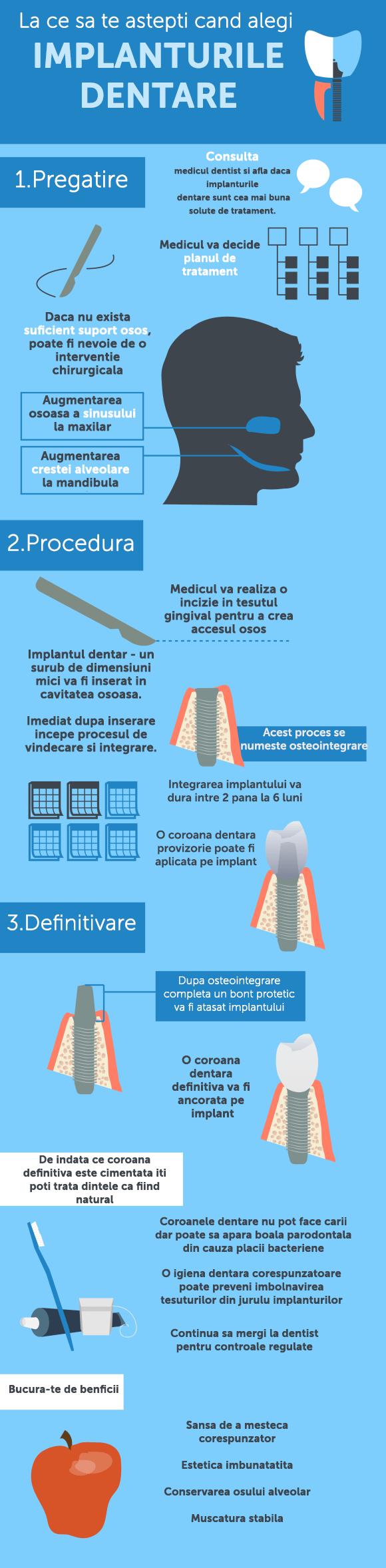 What to Expect When Getting Dental Implants Infographic 012 copy - Cum se insera un implant dentar? Ce trebuie sa stim despre implanturile dentare?