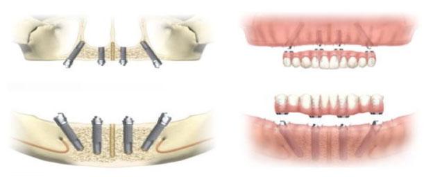 all on 4 - Scapa de proteza totala! Implanturi dentare si lucrare fixa in 24H!