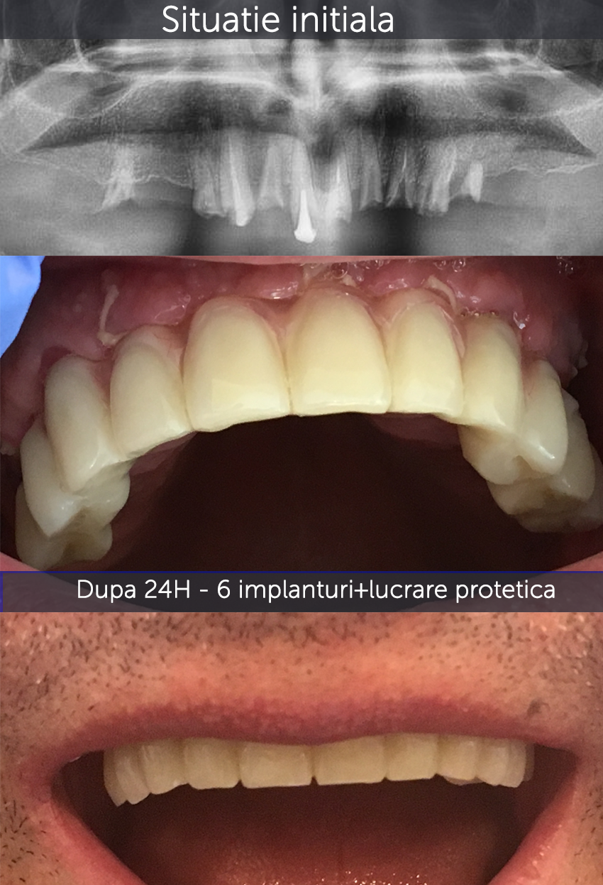 caz Mistodie - Scapa de proteza totala! Implanturi dentare si lucrare fixa in 24H!